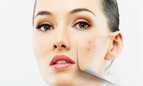 美国经典药妆 Murad慕拉家Acne祛痘系列海淘明星产品一览表